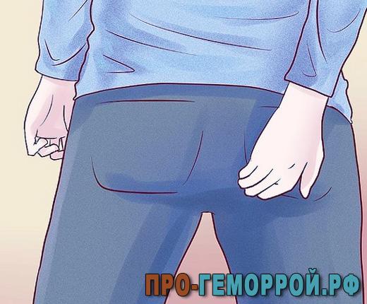 Первые симптомы геморроя