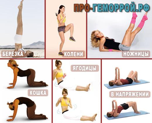 Упражнения при наружном геморрое для беременных