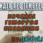 Видео. Лечение геморроя пиявками