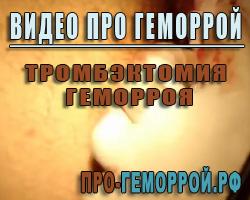 Видео про геморрой. Тромбэктомия геморроя