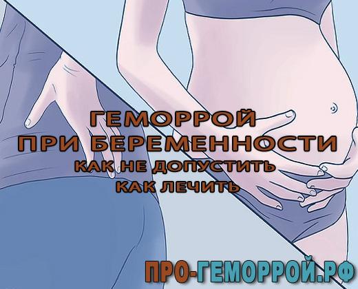 Гемеррой при беременности