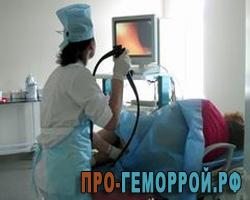 Колоноскопия при геморрое