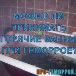 Горячая ванна при геморрое
