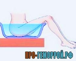 сидячая ванна при геморрое